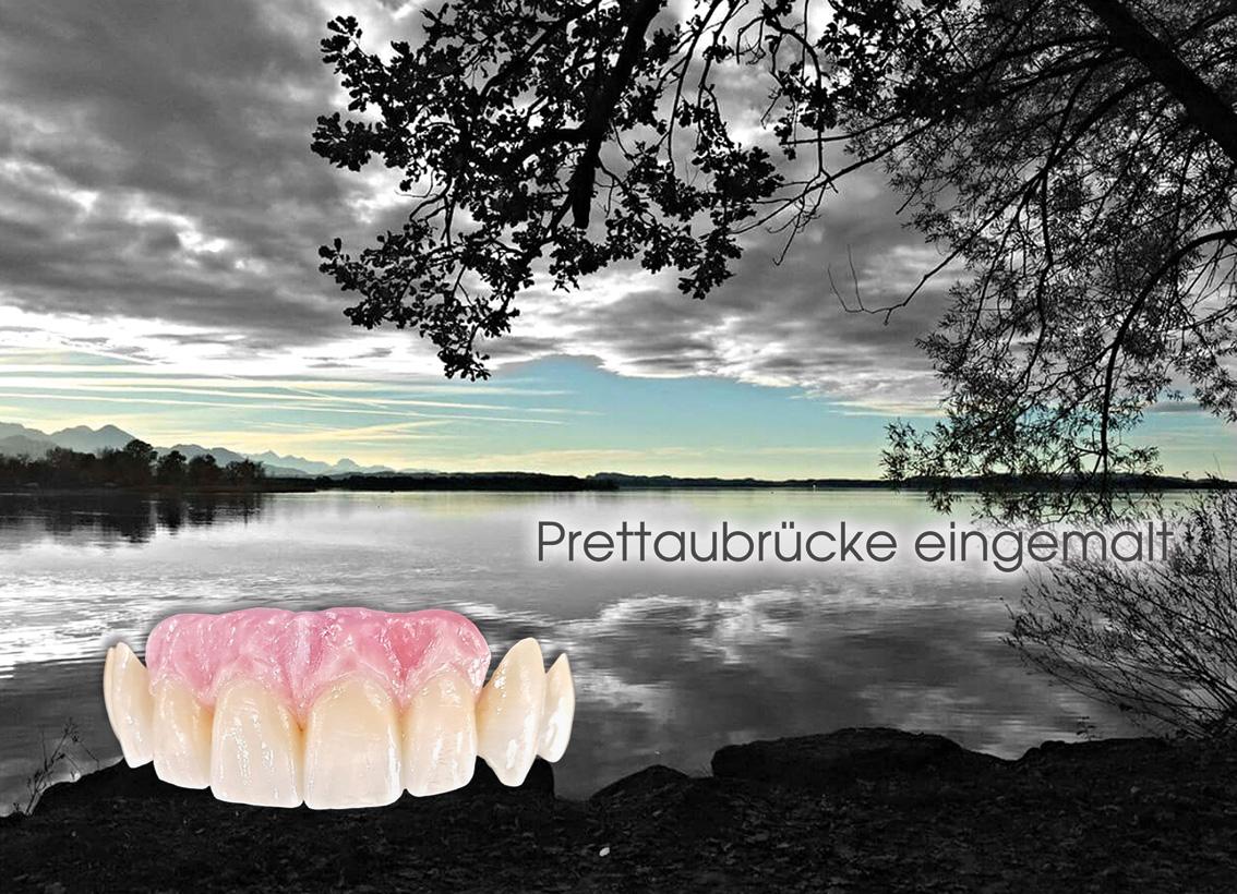 hallweger_dentallabor_10_brettau_01