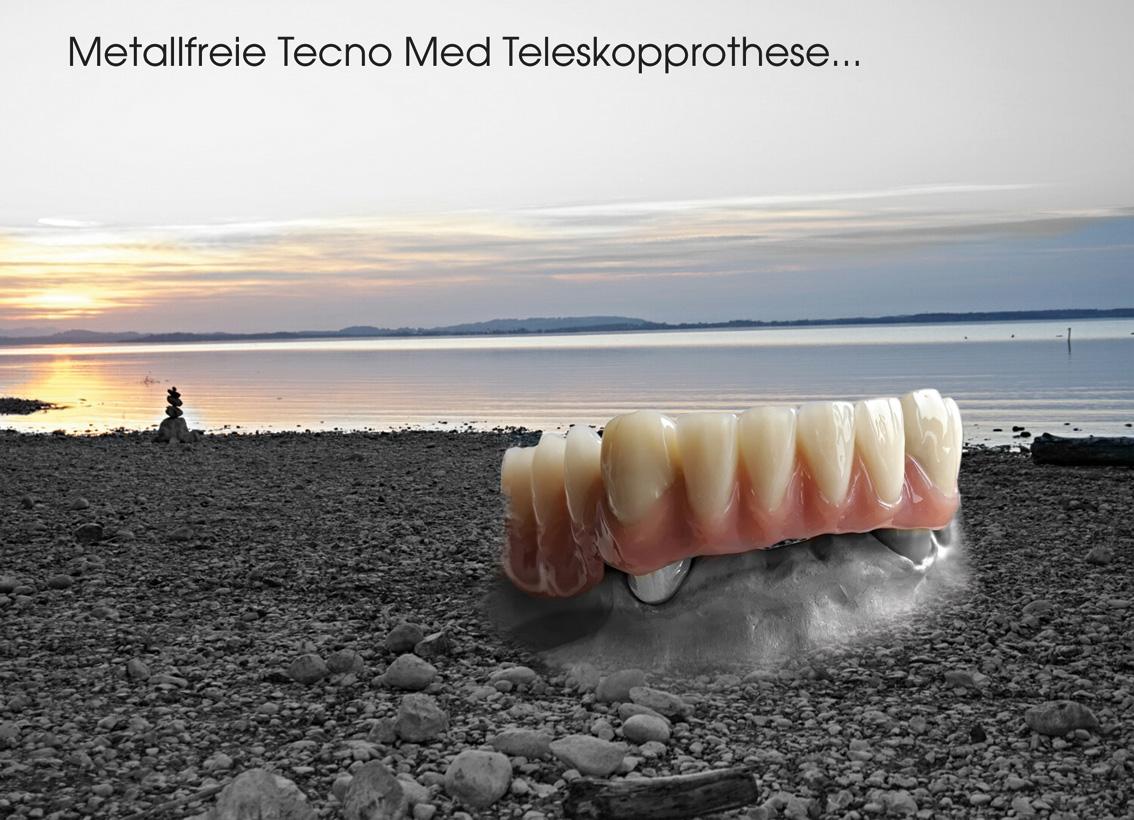hallweger_dentallabor_15_modellguss