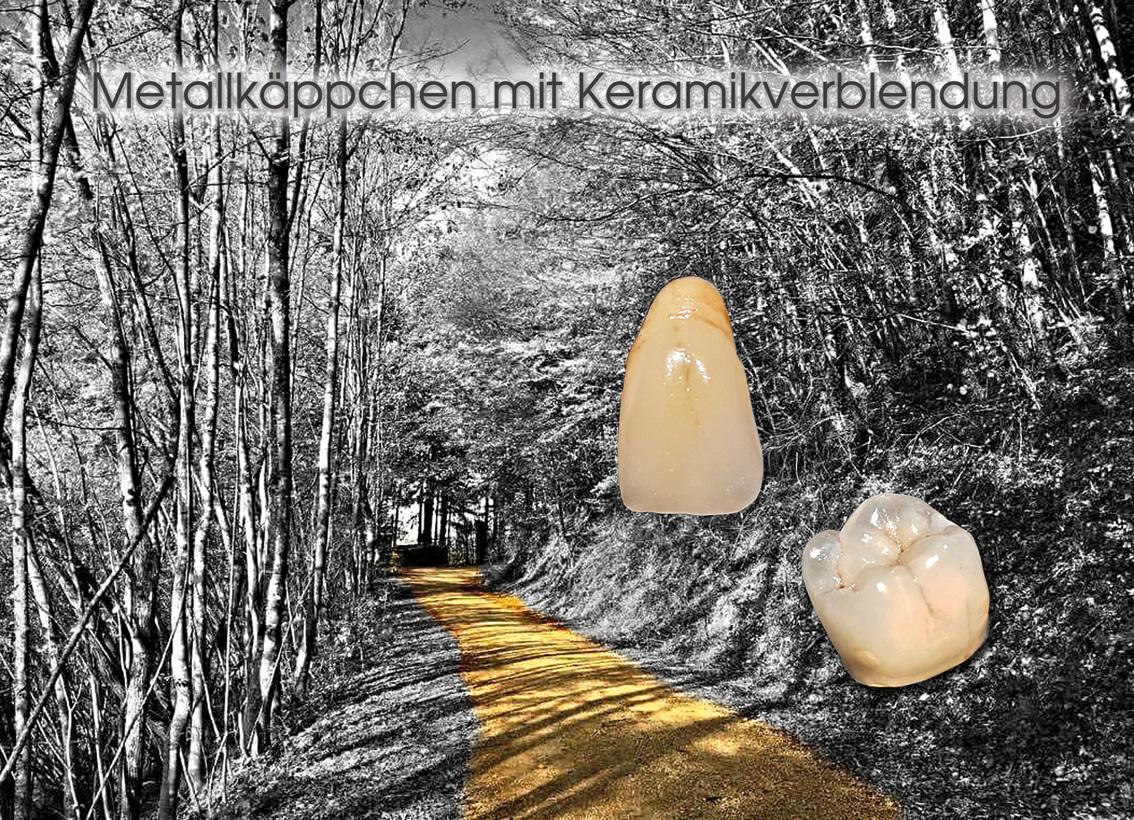 hallweger_dentallabor_7_mk_keramik