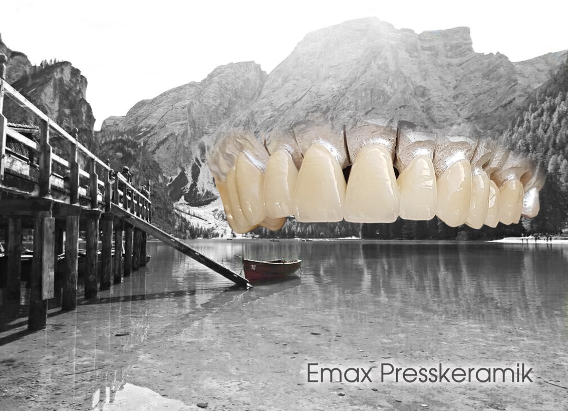 hallweger_dentallabor_8_emax_01