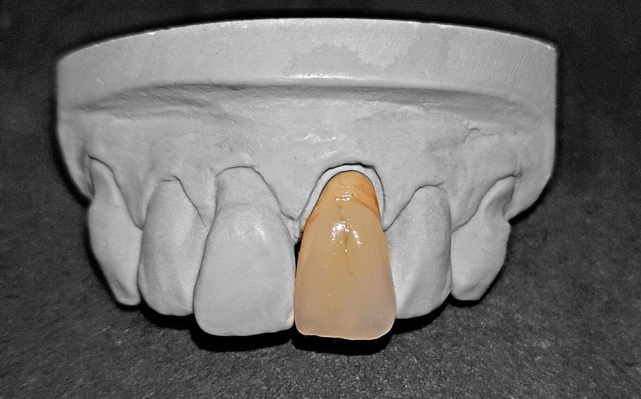 Metallkäppchen mit Keramikverblendung Frontzahn