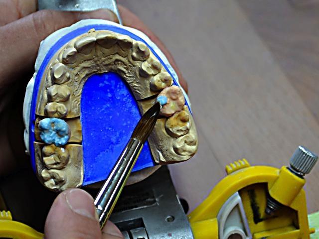 hallweger-dentallabor_arbeiten_06
